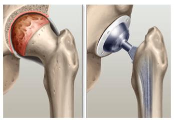 Antes e depois da cirurgia de prótese de quadril