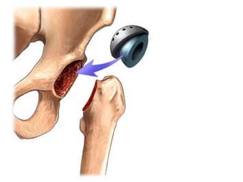Componente acetabular da prótese de quadril
