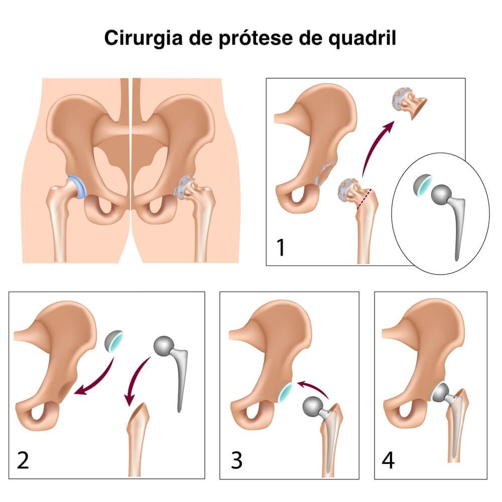 fleximobil articulatii plicuri