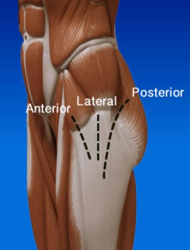 Locais de incisão da cirurgia de prótese de quadril