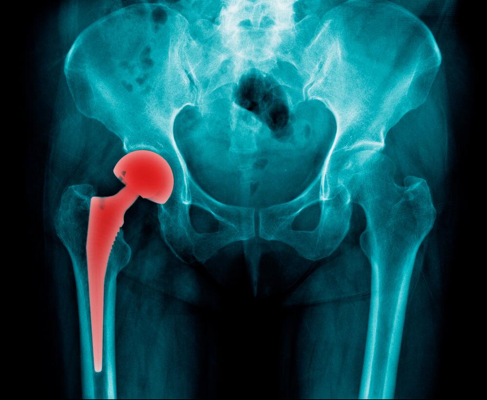 4 principais sintomas de rejeição de prótese de quadril