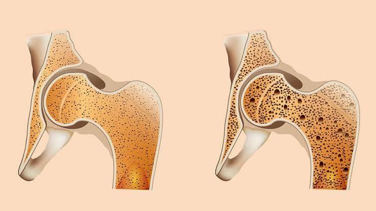 Osso normal e com osteoporose
