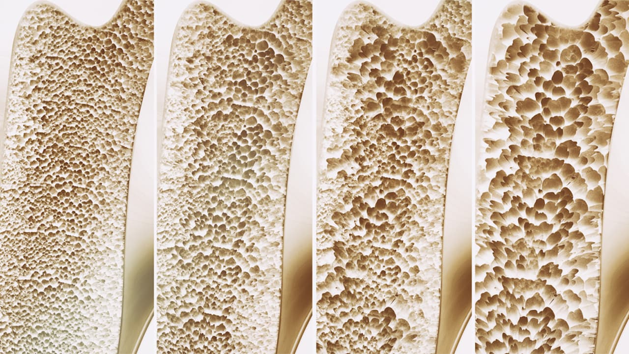 5 dicas para prevenir a osteoporose