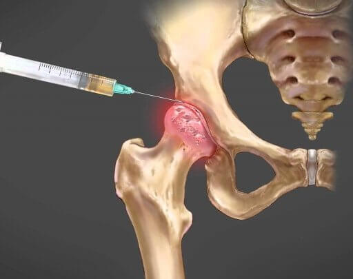 Como a infiltração no quadril pode ajudar no tratamento ortopédico?